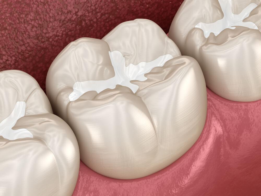 dental filling, visual graphic