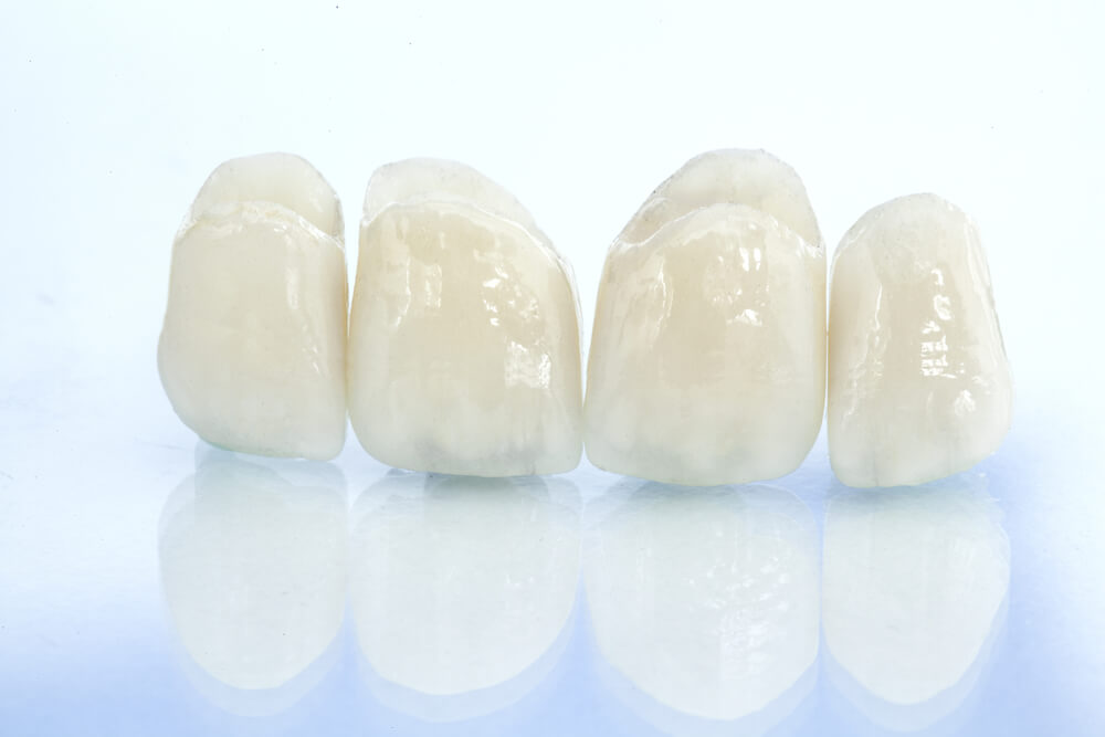 dental grown prosthetic on isolated background